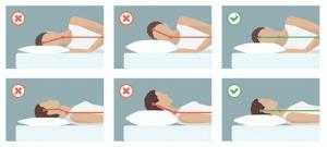 Position sommeil pour éviter mal de cou au réveil